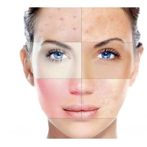Комбинированная и требовательная кожа